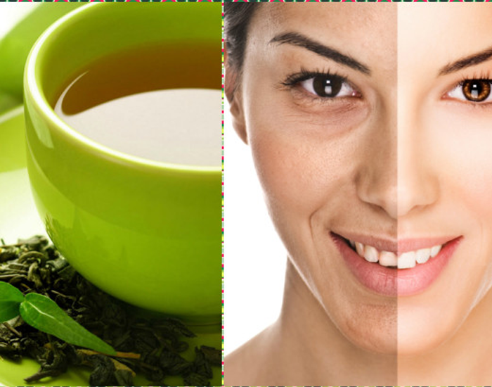Green Tea Has Incredible Benefits for Skin