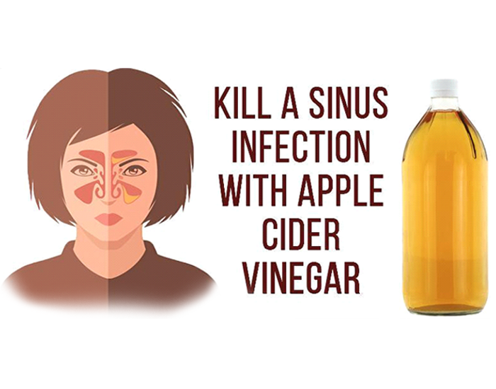 It will clear your Sinuses