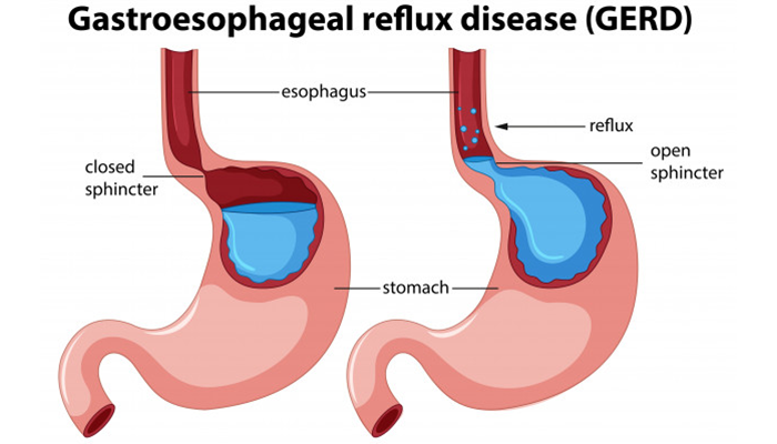 Possibility of Acid Reflux